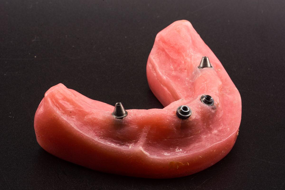 Mẫu hàm có 4 implant , 2 thảng và 2 nghiêng. Abutment đã được gắn trên implant. Đây là mẫu hàm thực hành all on 4 tại Sagodent.